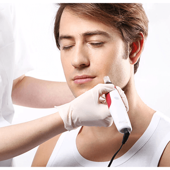 Microneedling - The Makeover Place